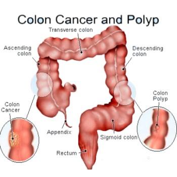 New Alternative Colon Cancer Treatment Options Nextculture